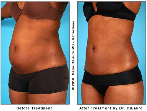Liposuction Cost Photos Results Laser Vaser Lipo