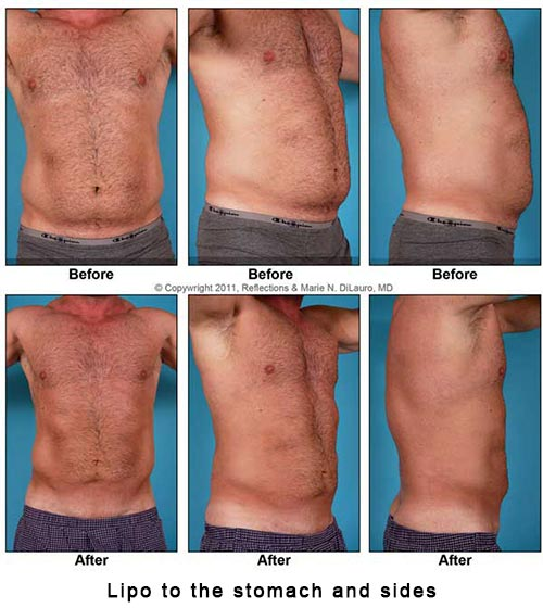 liposuction to man's stomach and sides