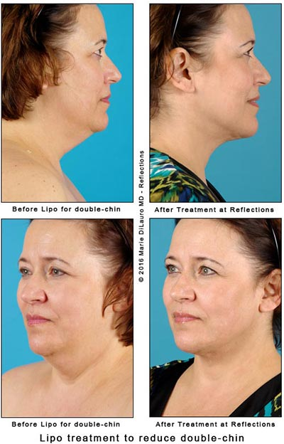 liposuction to reduce double-chin in woman