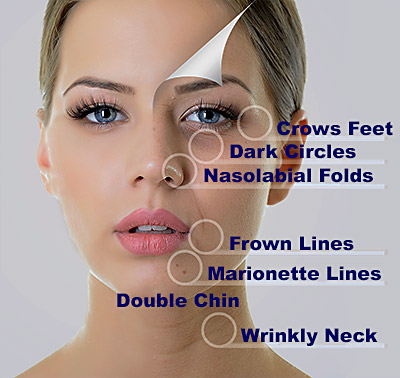 Facetite Treatments Double Chin Wrinkles Scars