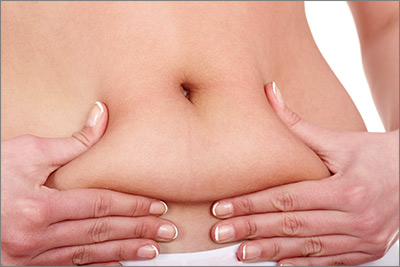 Reduce belly fat with Liposuction